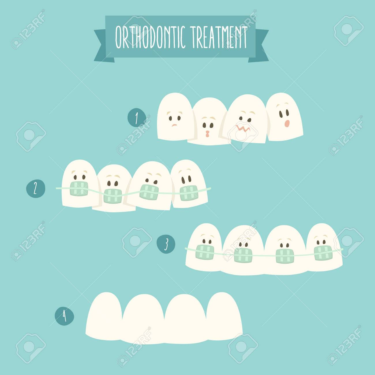 Cliparts for Orthodontic Treatment