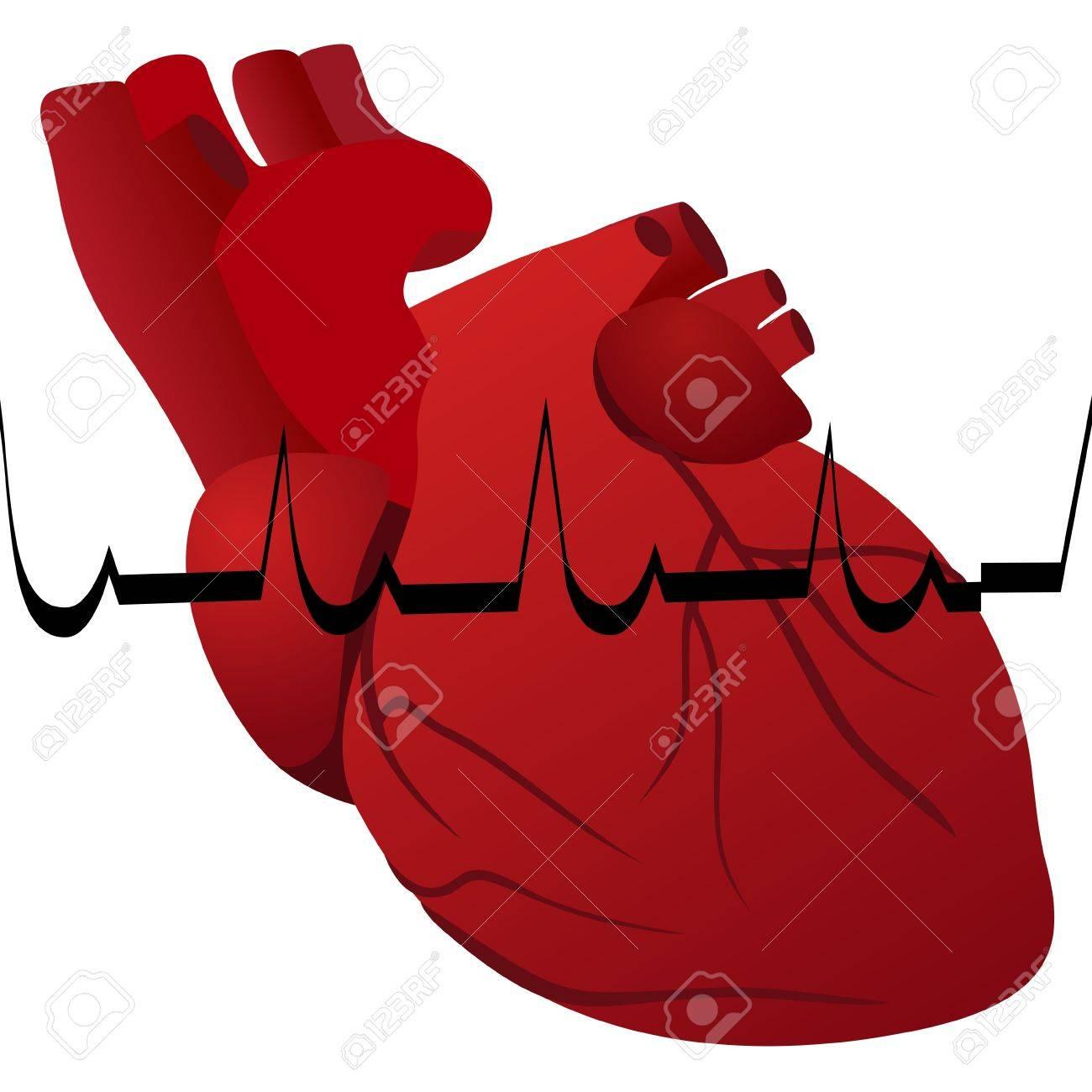 Das Menschliche Herz Und Kardiogramm Myokardinfarkt. Die Abbildung ...