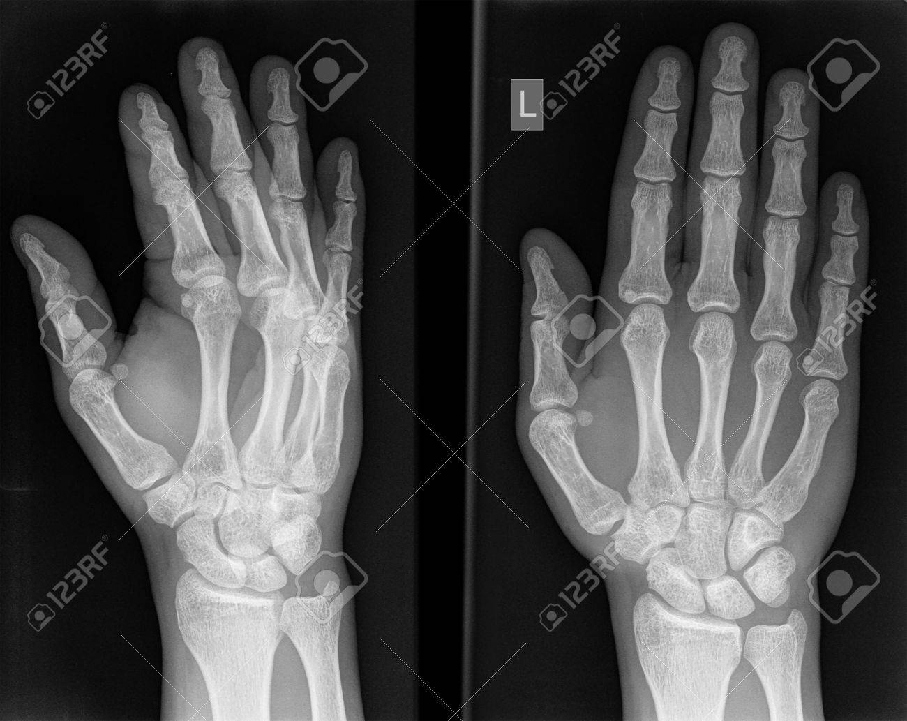 X-ray Inspection Of The Right Hand Of The Man. Stock Photo, Picture ...