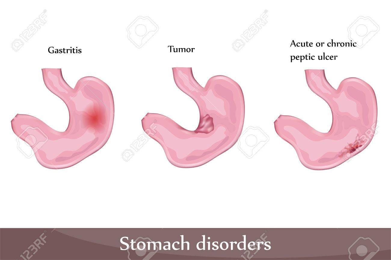 Lcera Péptica Trastornos De Estómago, Gastritis, Tumor. Diagrama ...