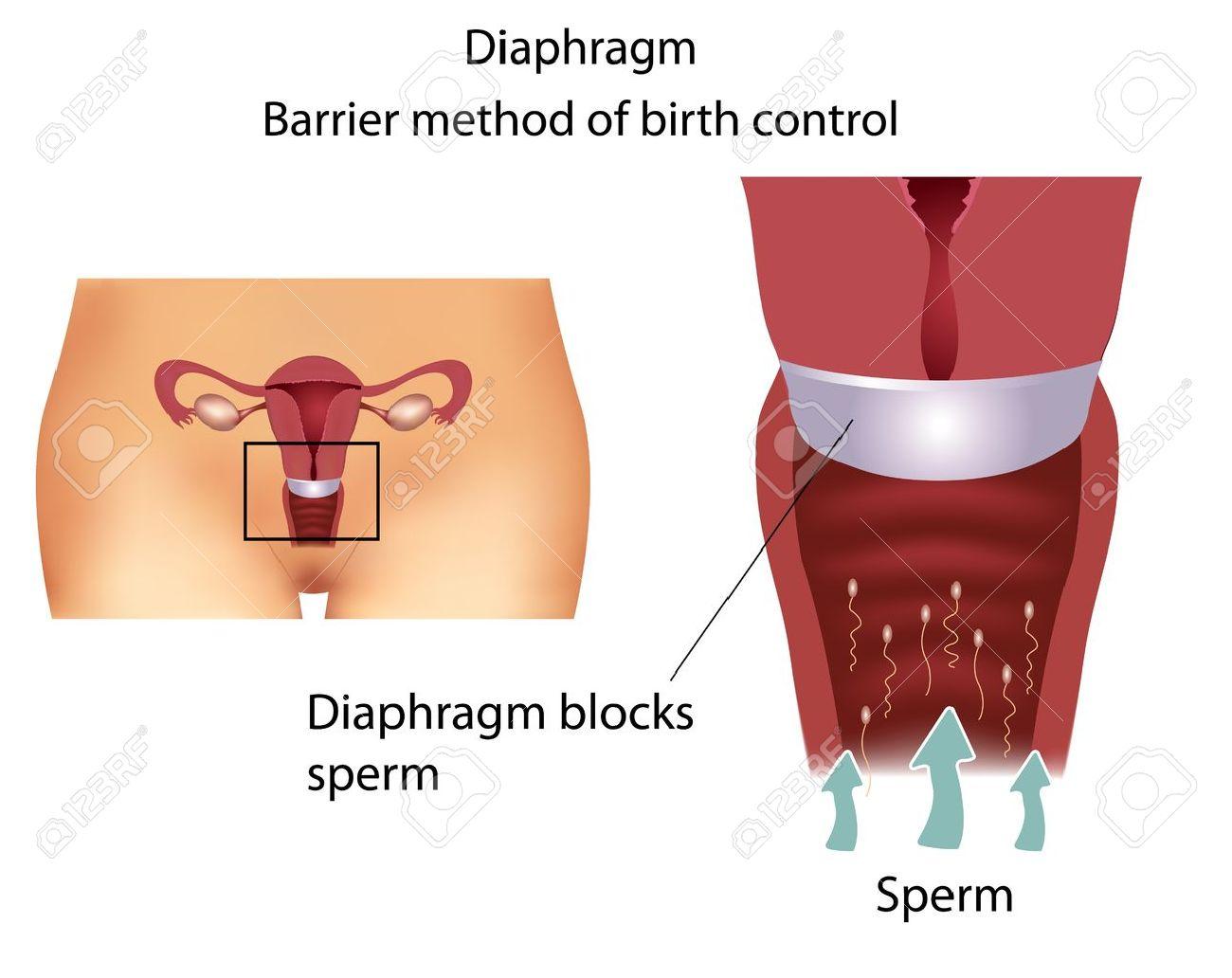 Barrera Método Anticonceptivo Con Diafragma. Detallada Anatomía Del ...