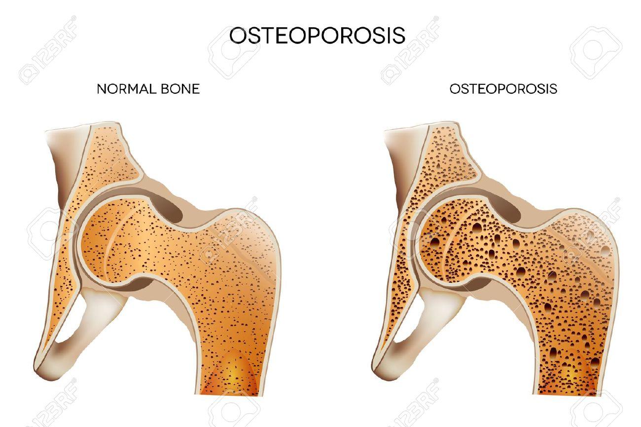 Resultado de imagen para huesos saludables