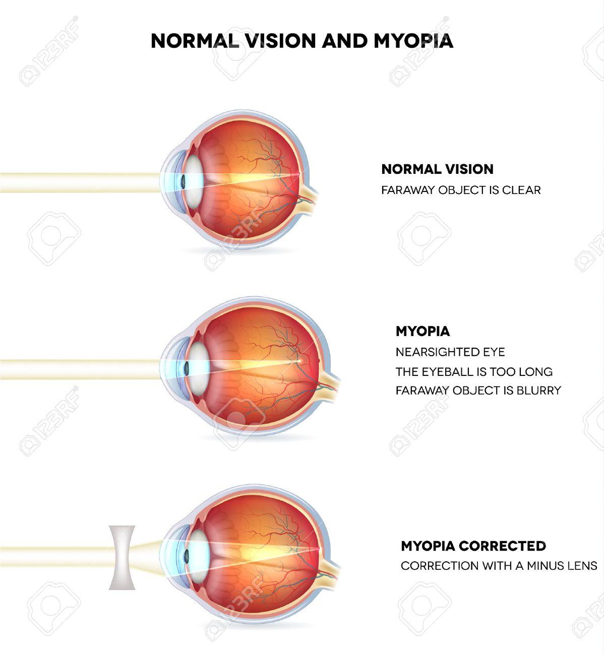 Myopia And Normal Vision. Myopia Is Being Shortsighted. Myopia ...