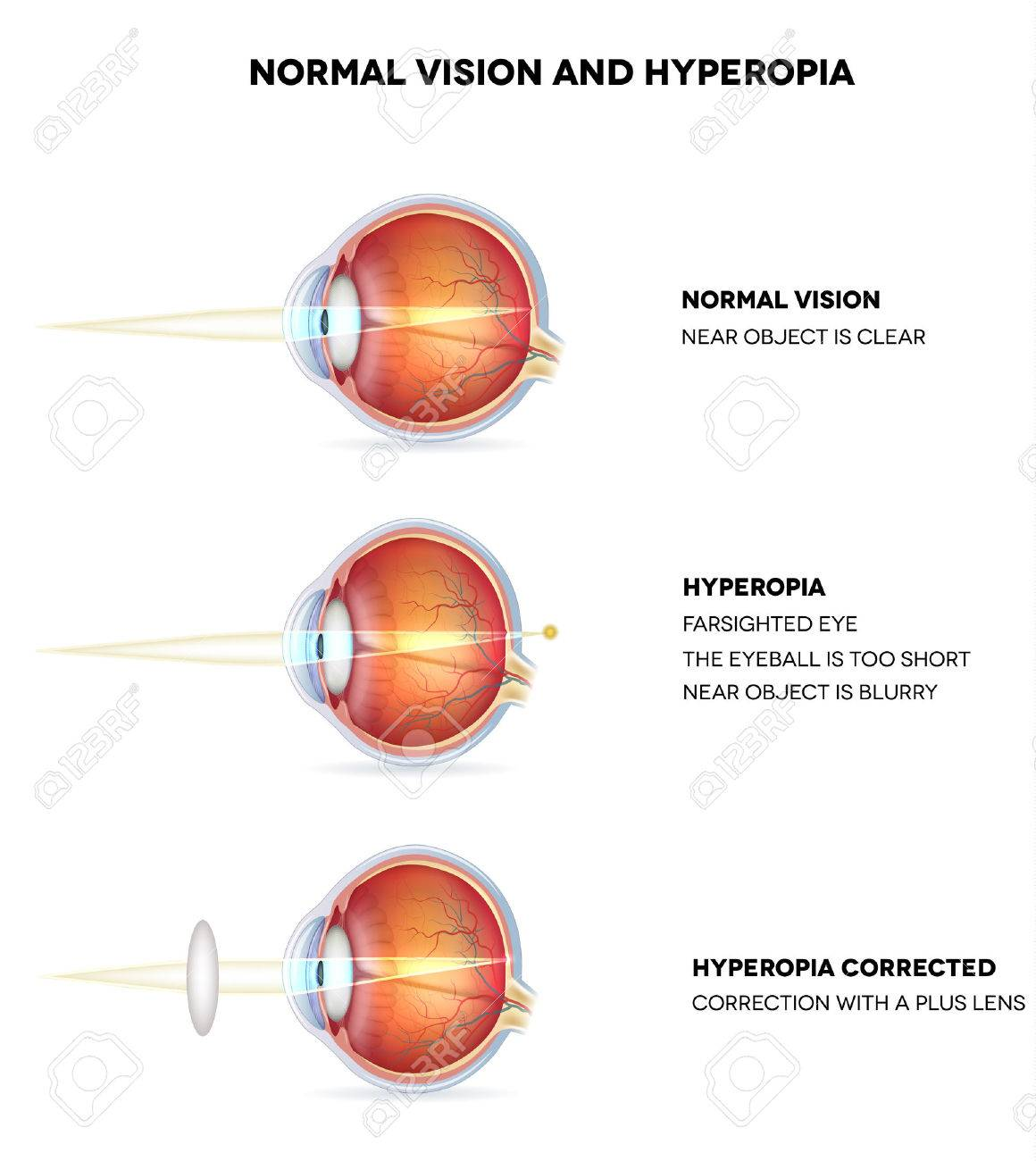 2cf7d9baf3b3 Hyperopia is being farsighted. Illustration shows hyperopia corrected with a