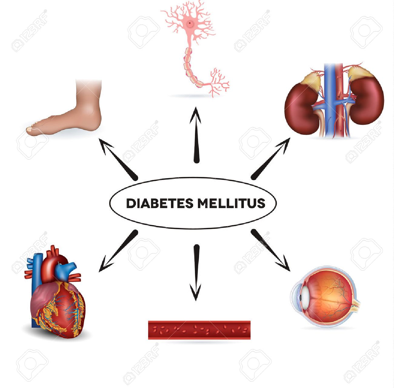 sistemas de órganos afectados por diabetes