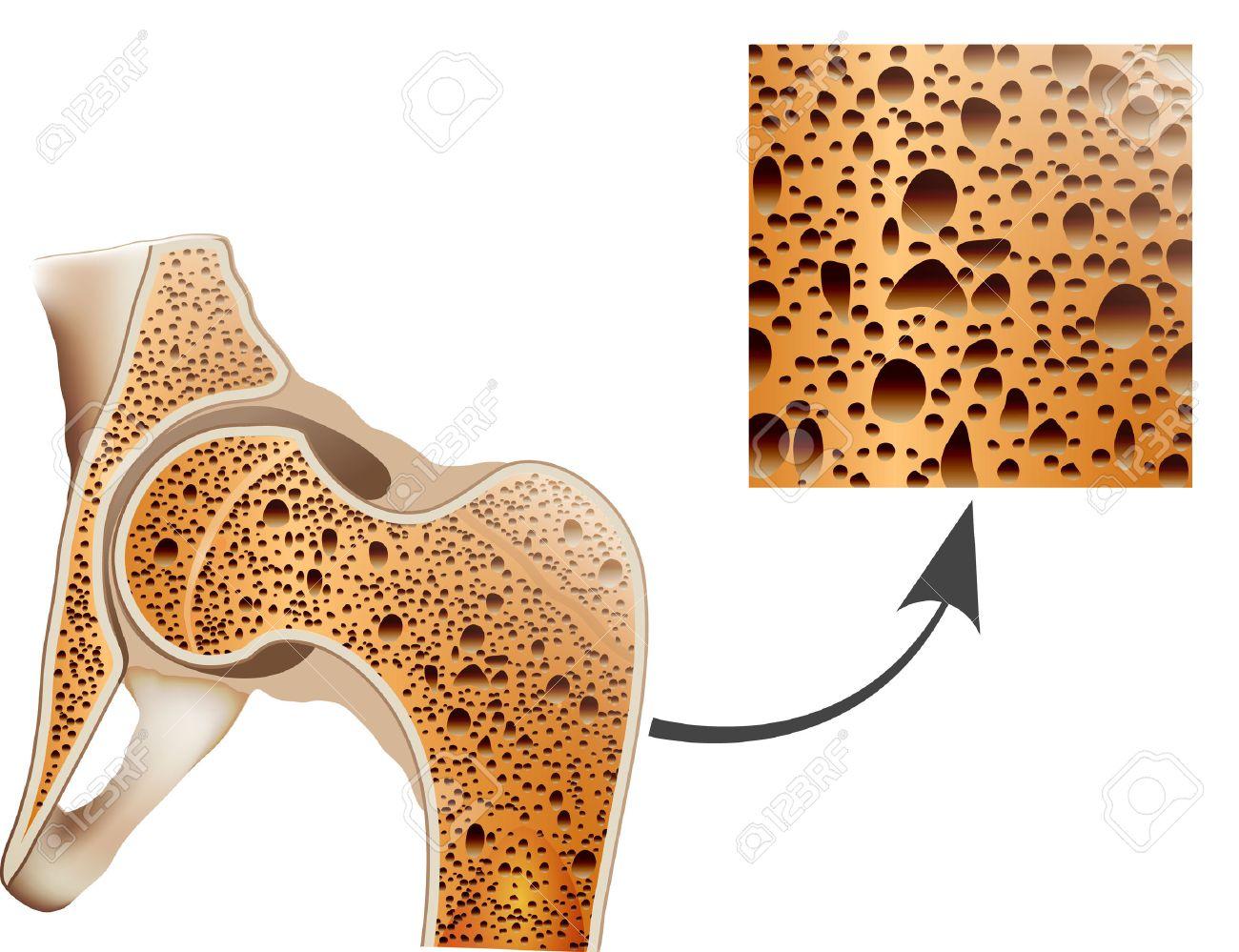 Osteoporosis In Femur Bone, Human Bone Anatomy. Royalty Free ...