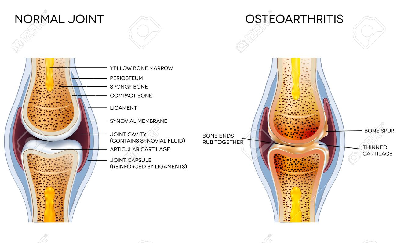 Osteoarthritis and normal joint anatomy - 36861708