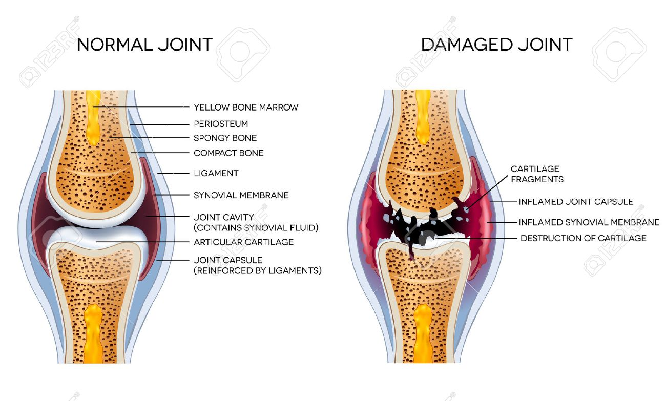 Damaged Joint And Healthy Joint Detailed Diagram Royalty Free ...