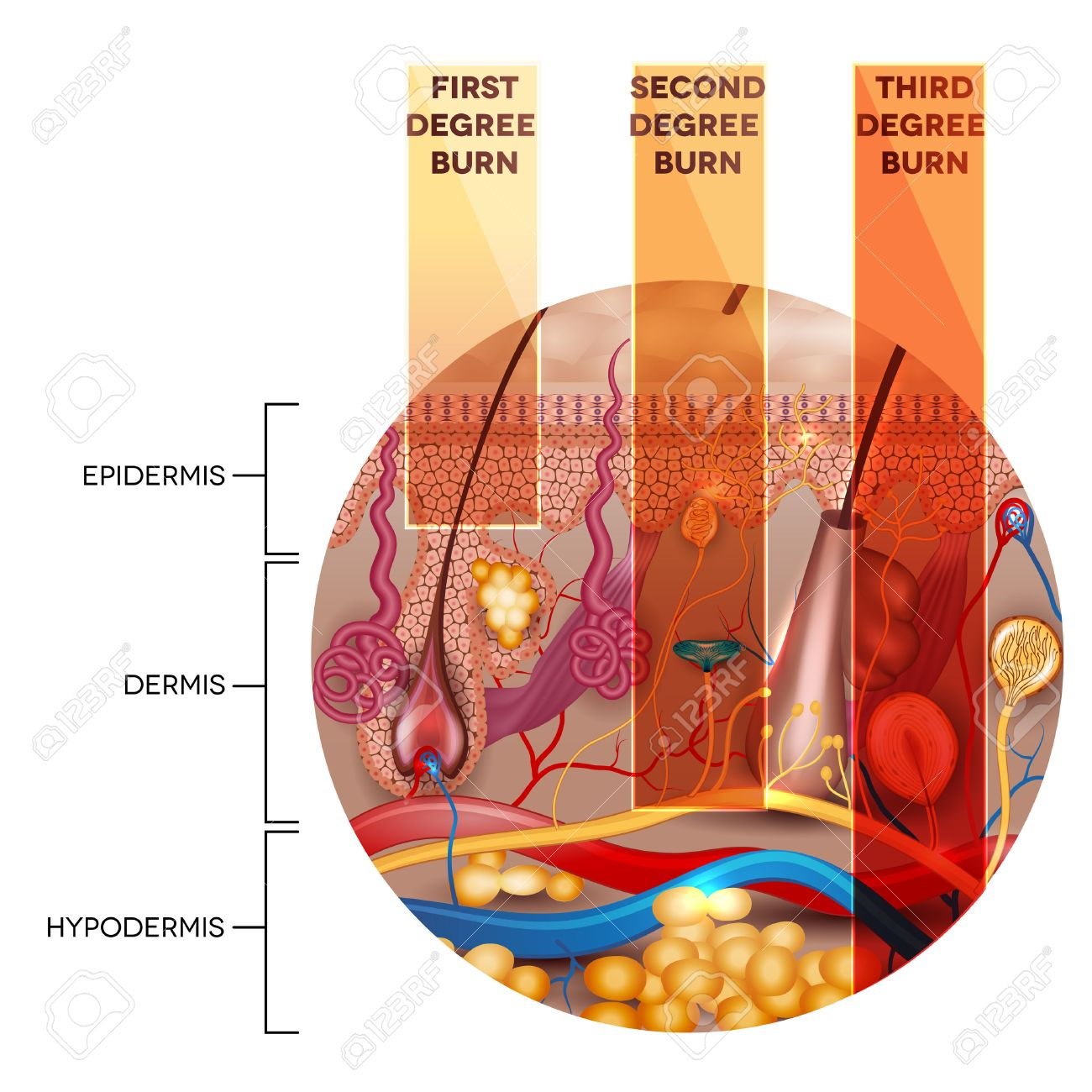 Round Shape Skin Anatomy And Skin Burn Classification Stages ...