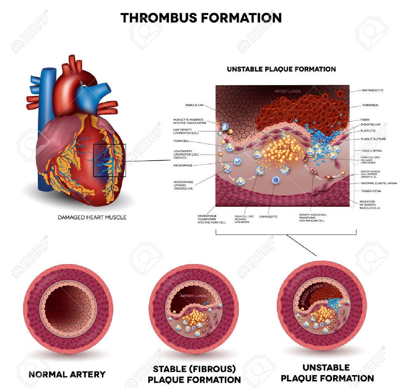 sinais de sintomas cardíacos no coágulo sanguíneo