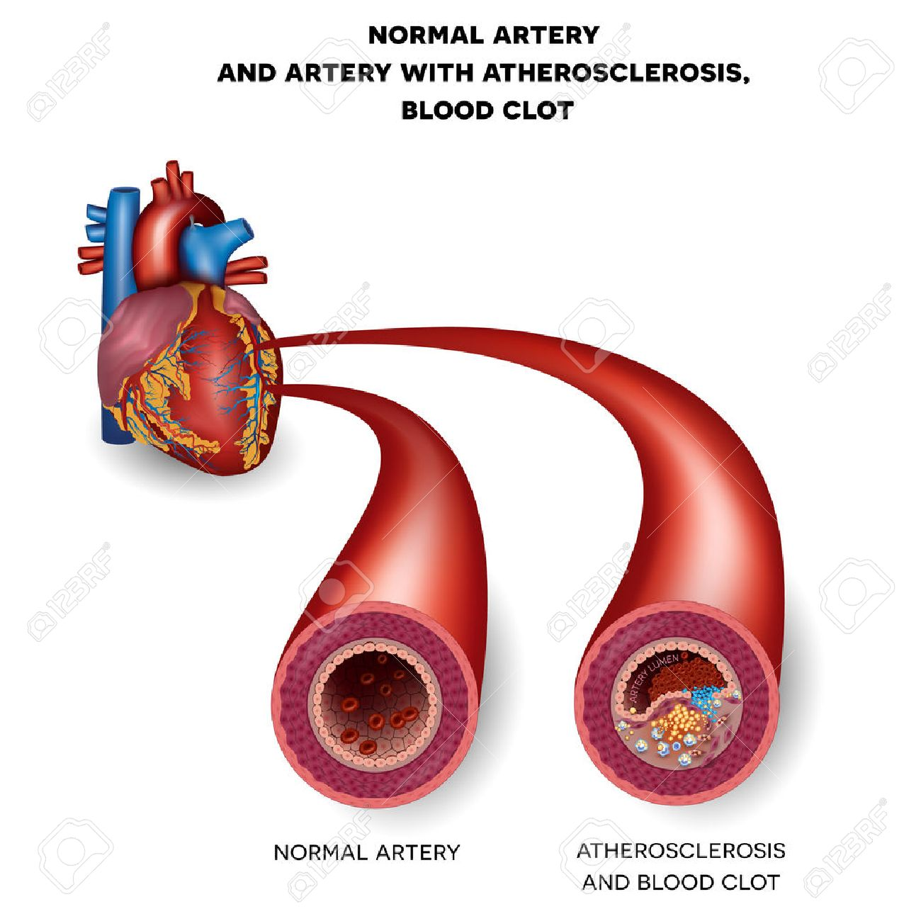 Normal Artery And Unhealthy Artery With Blood Clot. Plaque Rupture ...
