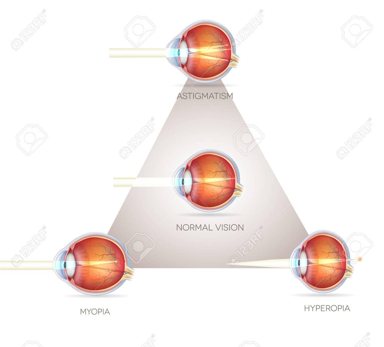 d7f550507b11 Eye Vision Triangle