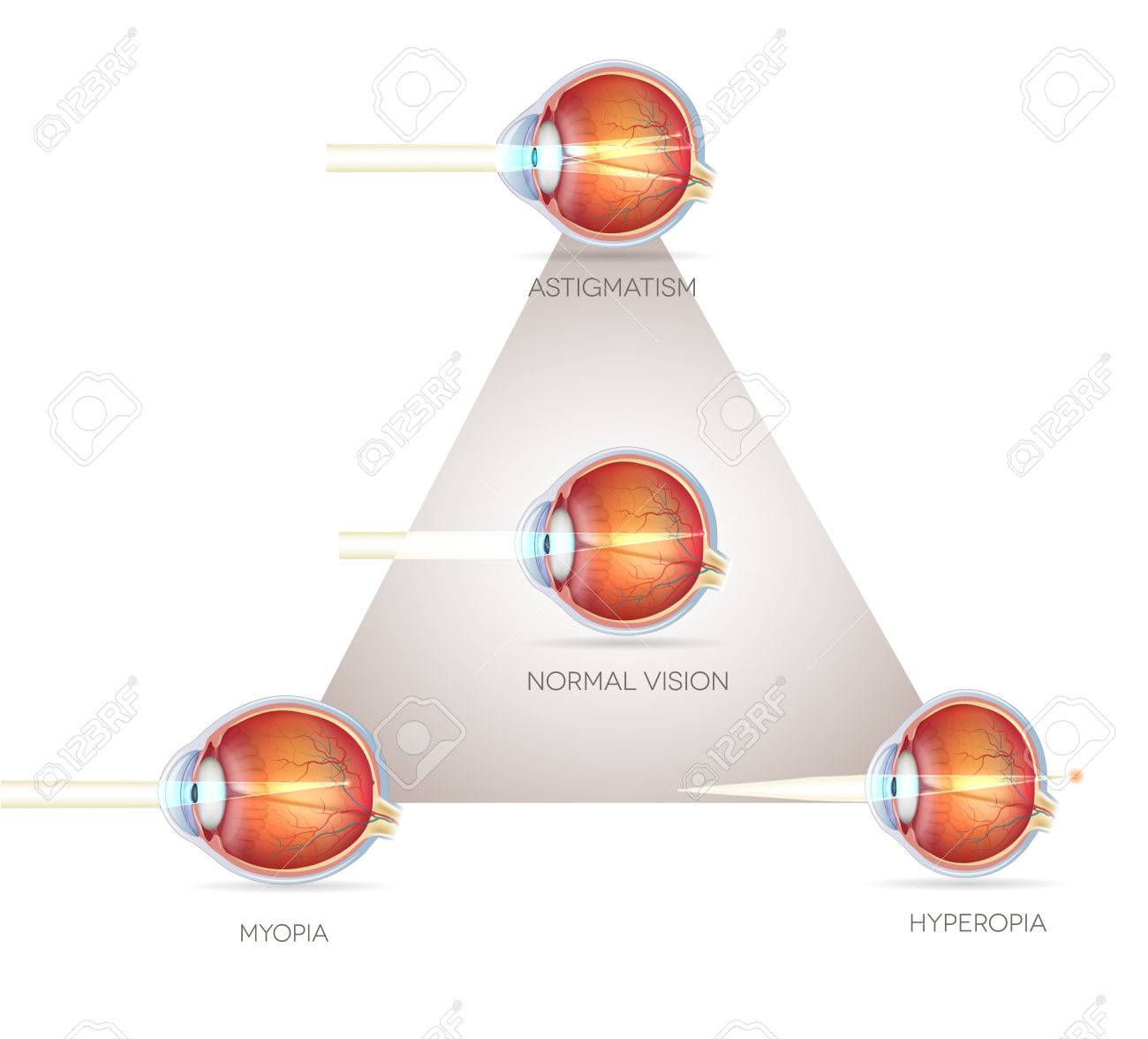 Ojo Triángulo Visión, Trastornos De La Visión. Ojo Normal ...
