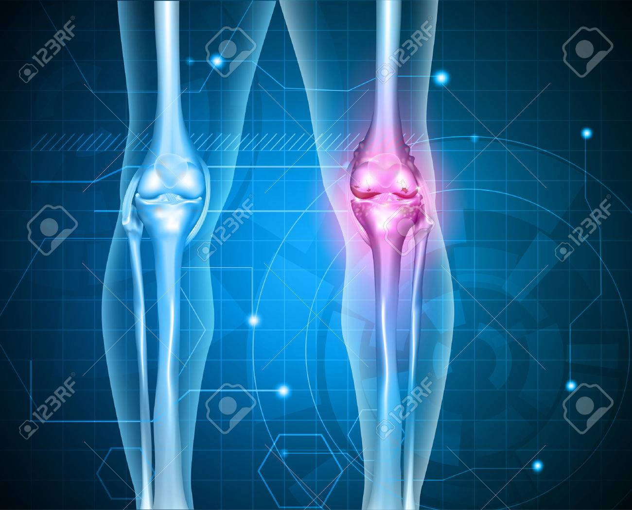Knee pain abstract background. Healthy joint and unhealthy painful joint with osteoarthritis. - 39409566