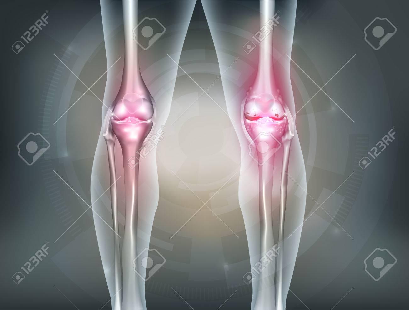 Menschliche Beine Und Kniegelenk Detaillierte Anatomie, Schmerzhafte ...