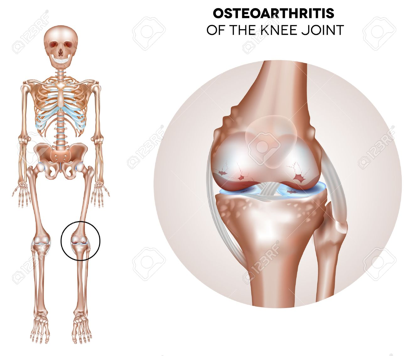 Arthritis of the knee joint damaged joint cartilage and osteophytes arthritis of the knee joint damaged joint cartilage and osteophytes stock vector 40404434 ccuart Image collections
