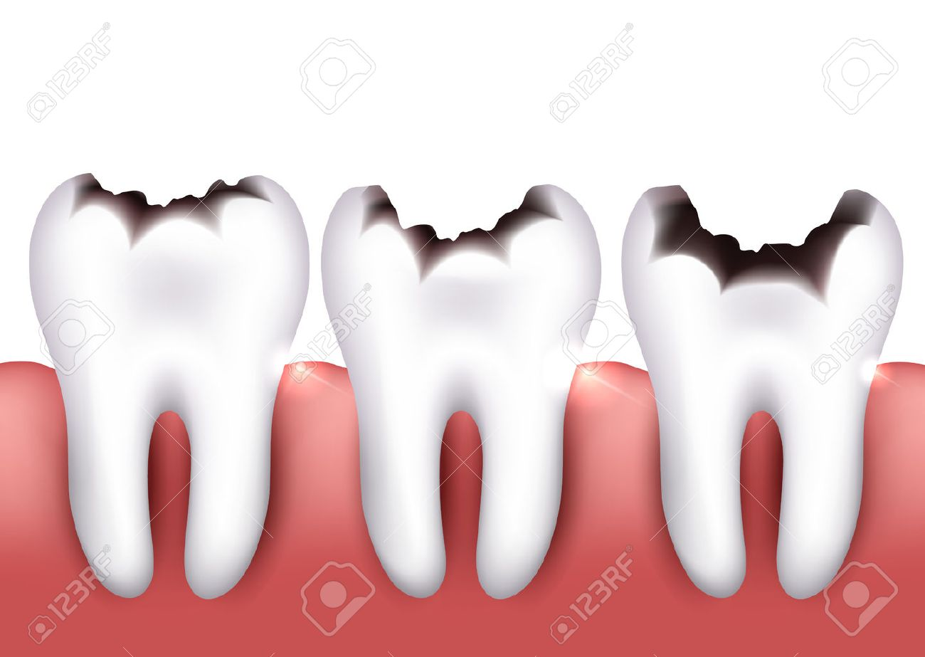 Dental caries, tooth decay, health problem. - 46560596