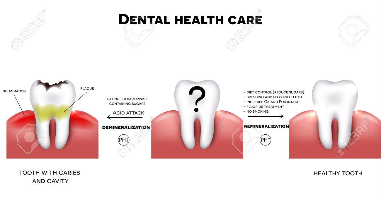 Dental health care, tips how to maintain healthy tooth, diet