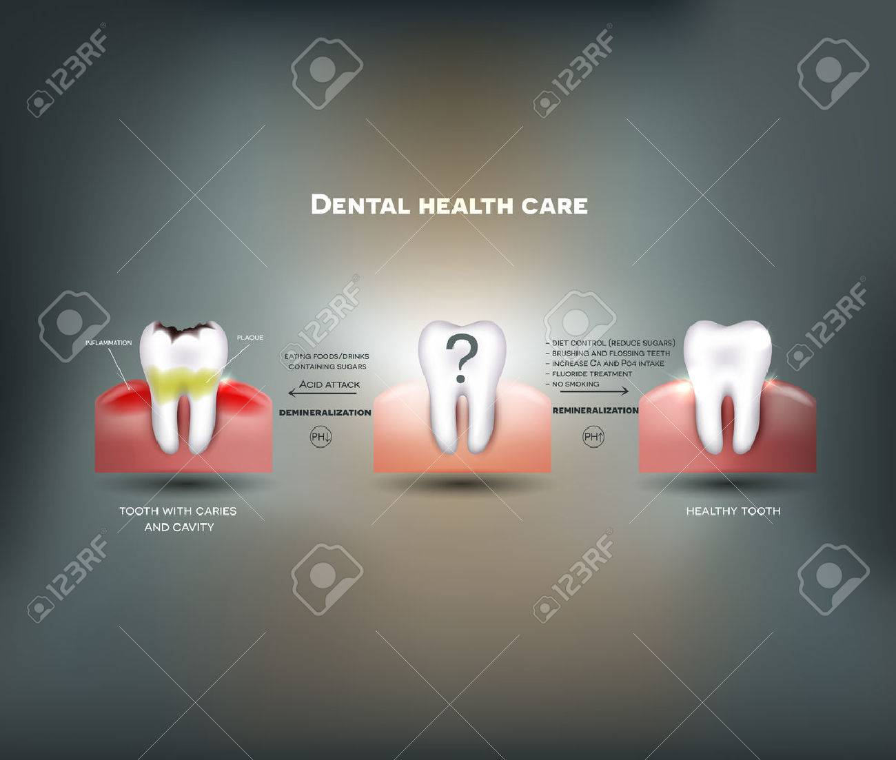 Dental health care tips  Diet without sugars, brushing, fluoride