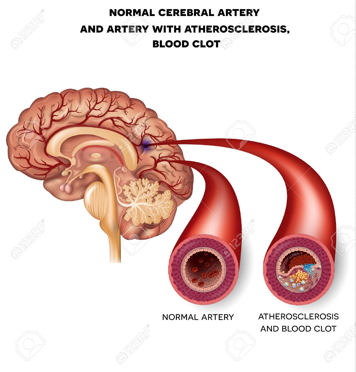 Normal Cerebral Artery And Artery With Atherosclerosis And Blood ...