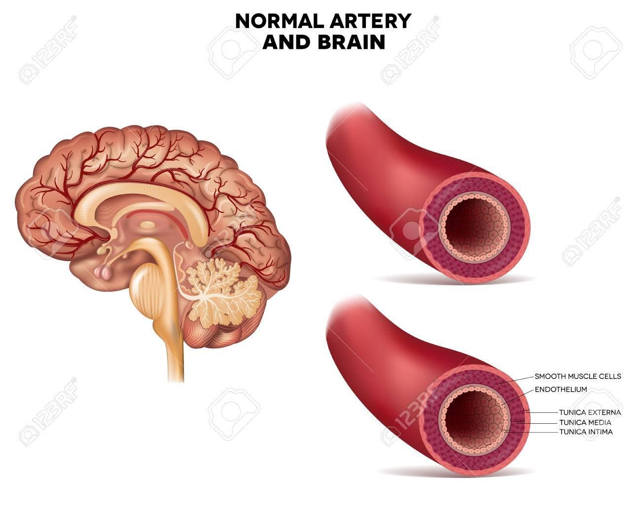 Estructura De La Arteria Normal Y El Cerebro Se Detalla La Anatomía ...