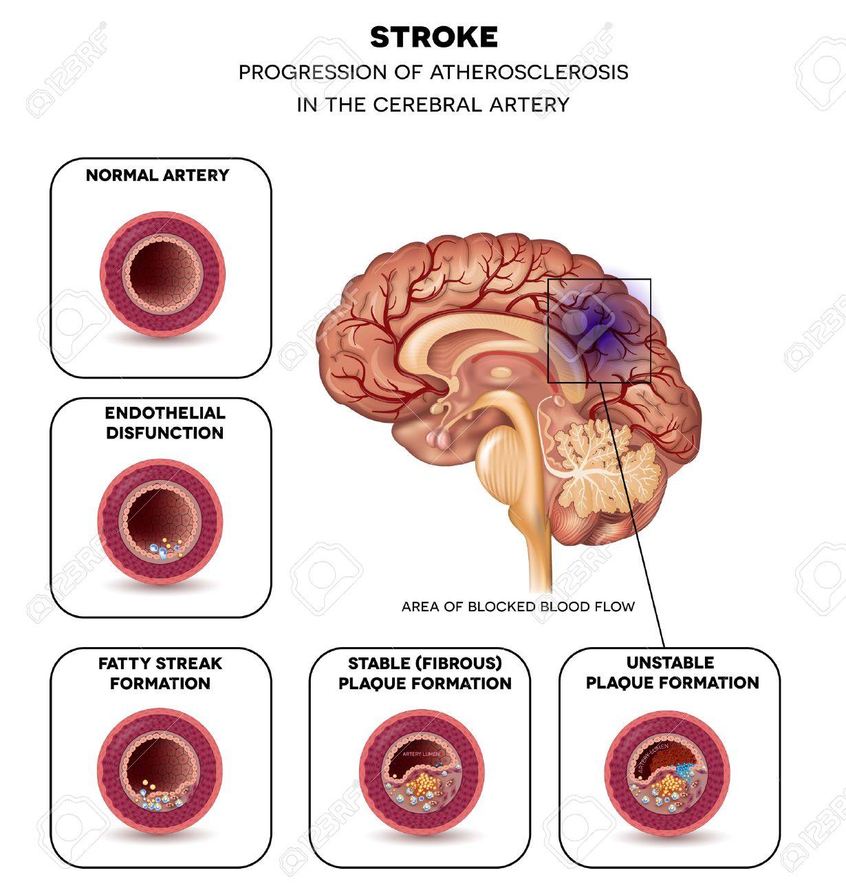 Stroke In The Cerebral Artery, Atherosclerosis Progression Step ...