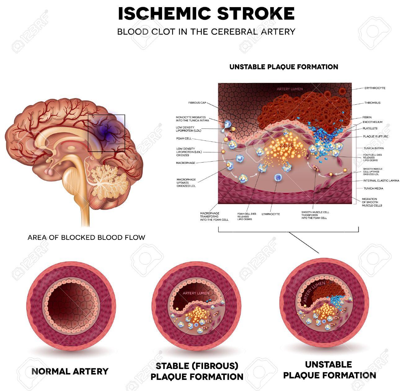 El Accidente Cerebrovascular Isquémico En La Arteria Cerebral. La ...