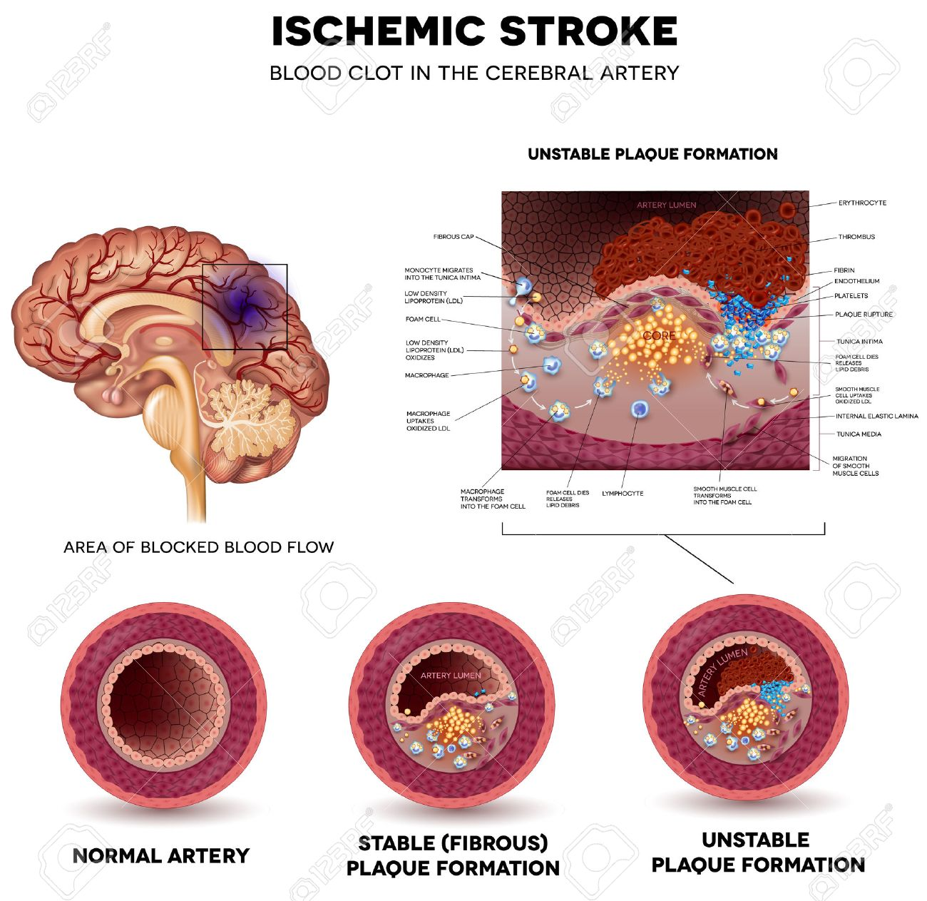 Ischemic Stroke In The Cerebral Artery. Stable And Unstable Plaque ...