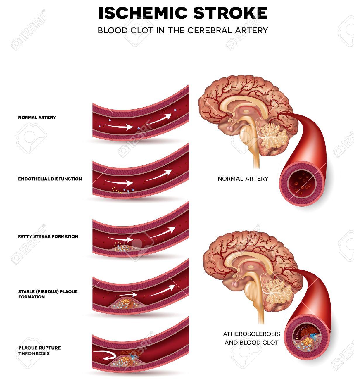 La Formación De Coágulos De Sangre En La Arteria Cerebral. Bloqueo ...