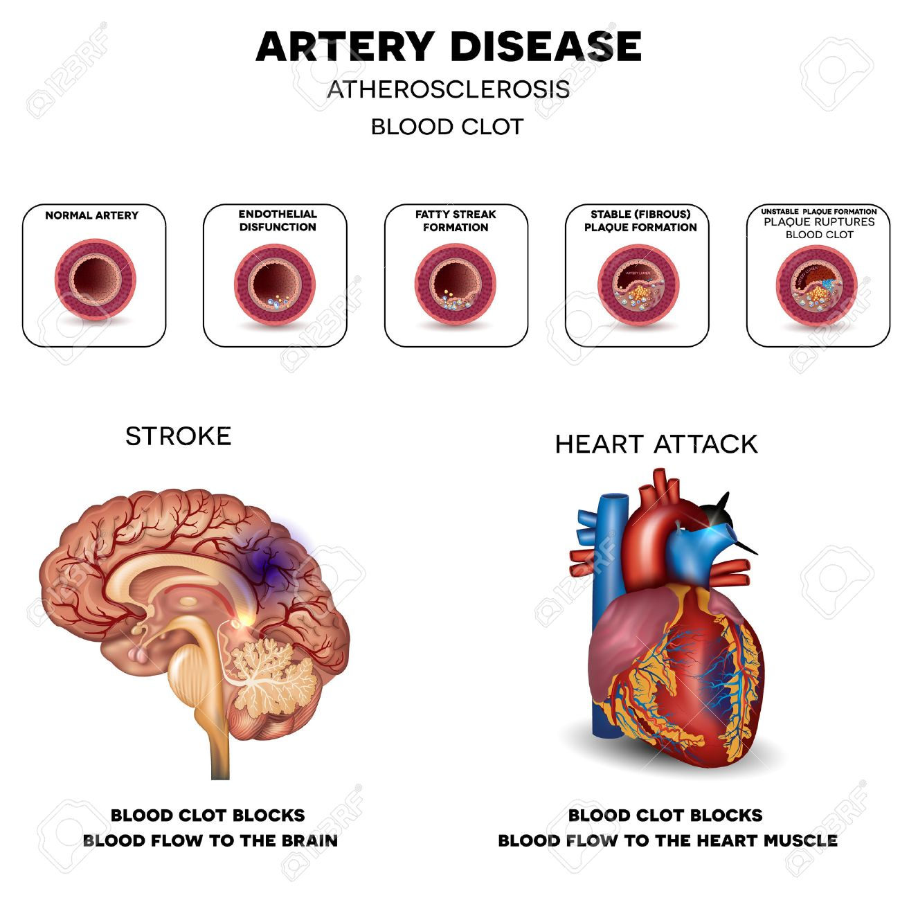 Artery Disease, Atherosclerosis, Stroke And Heart Attack. Fatty ...