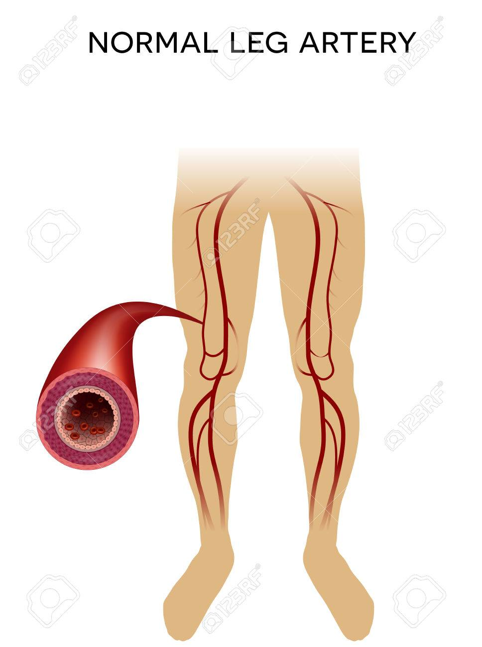 Healthy Leg Artery On A White Background. Royalty Free Cliparts ...