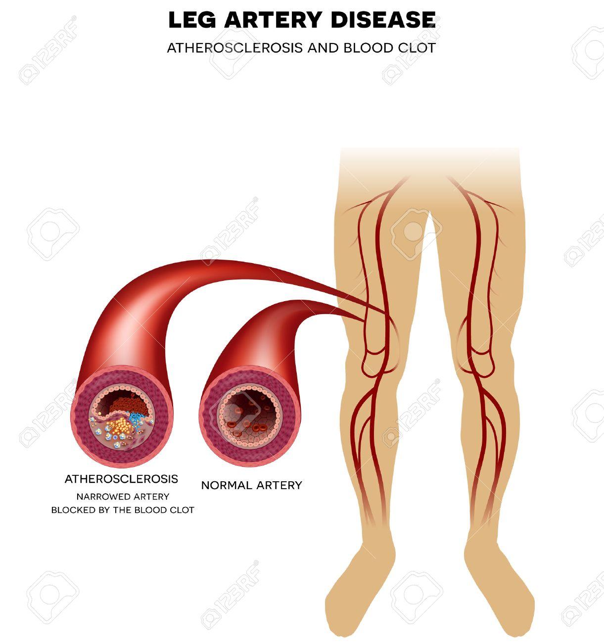 Healthy Leg Artery And Peripheral Arterial Disease, Atherosclerosis ...