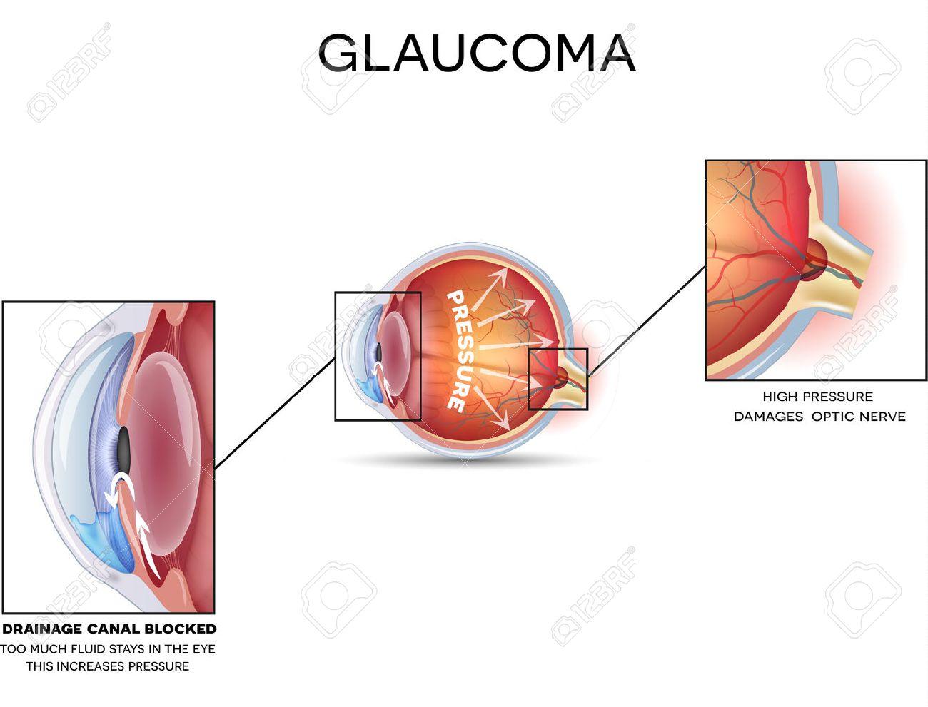 Glaucoma. Detailed anatomy of Glaucoma, eye disorder on a white background. - 47172131