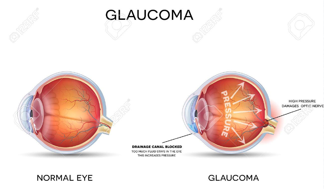 Glaucome. Anatomie détaillée du glaucome et de l'?il sain. Banque d'images - 47172133