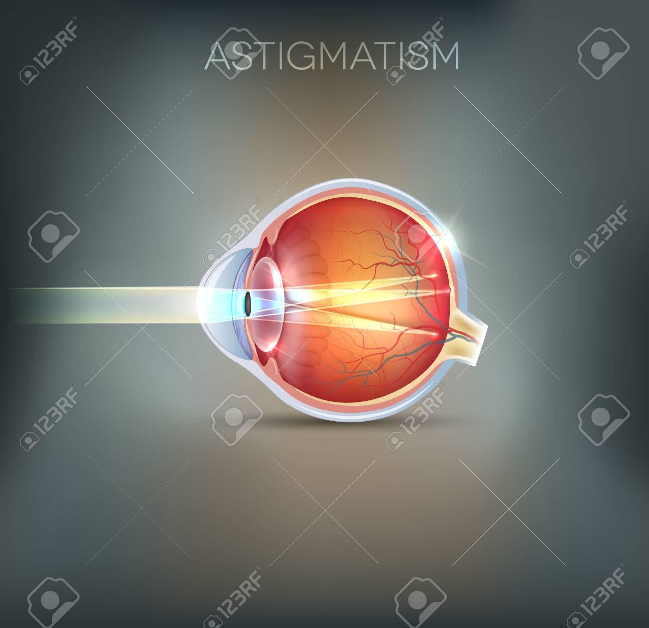 Human Vision Disorder Astigmatism Anatomy Of The Eye Cross
