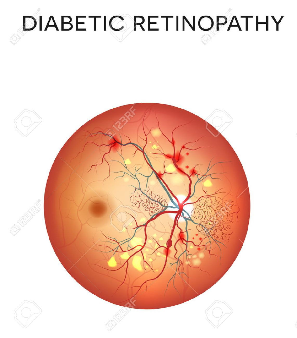 Diabetic retinopathy. The eye condition that affect people with diabetes. Illustration of the retina of the eye - 47427617