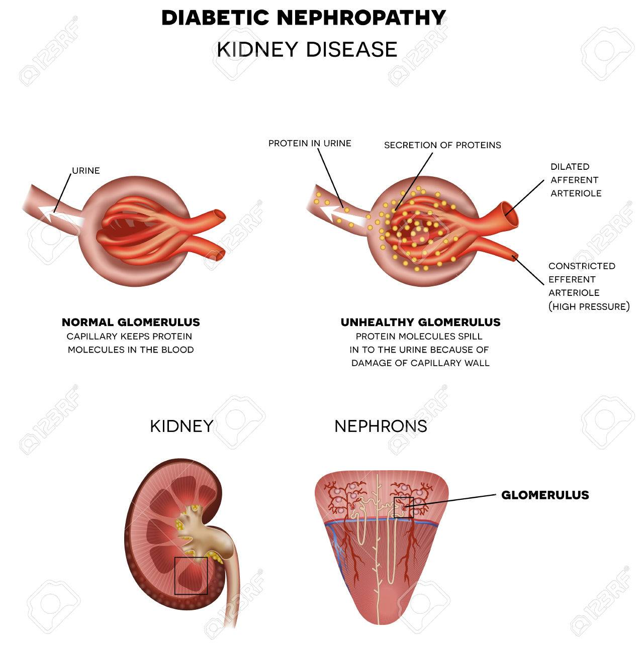 Diabetic Nephropathy, Kidney Disease Caused By Diabetes. Renal ...