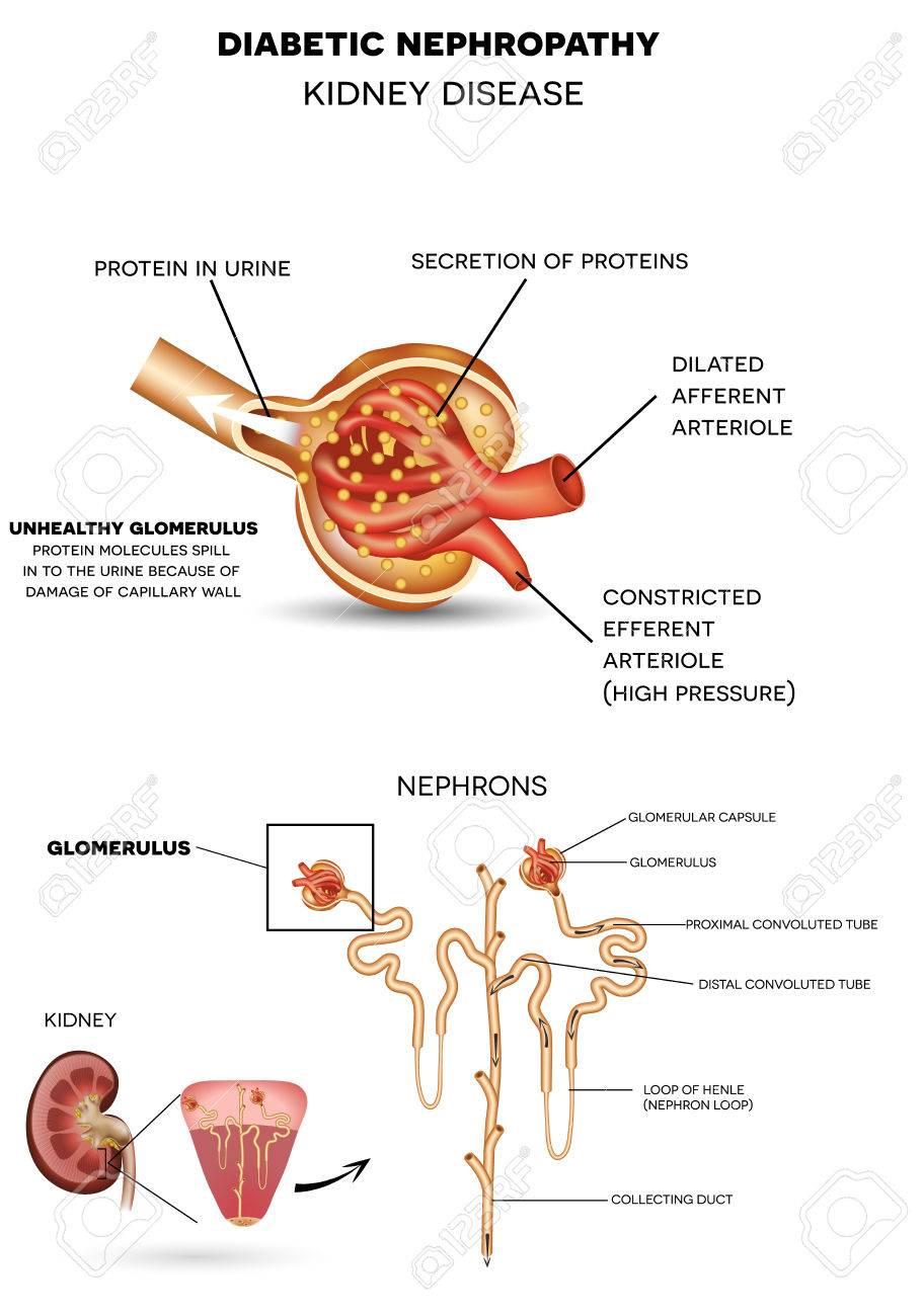 Nefropatía, Enfermedad Renal Diabética Causada Por Diabetes ...