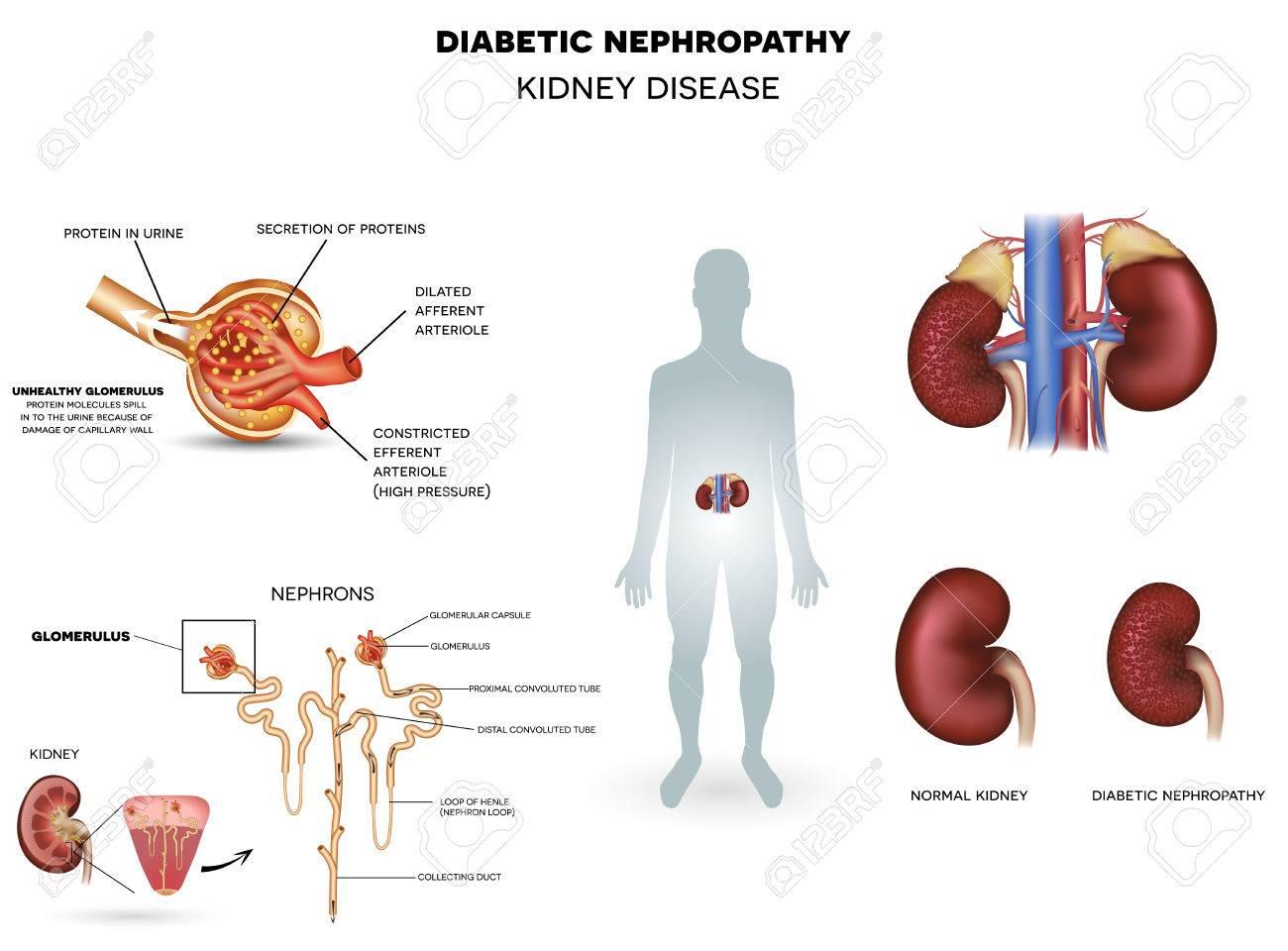 nefropatía hiperoxalúrica en diabetes