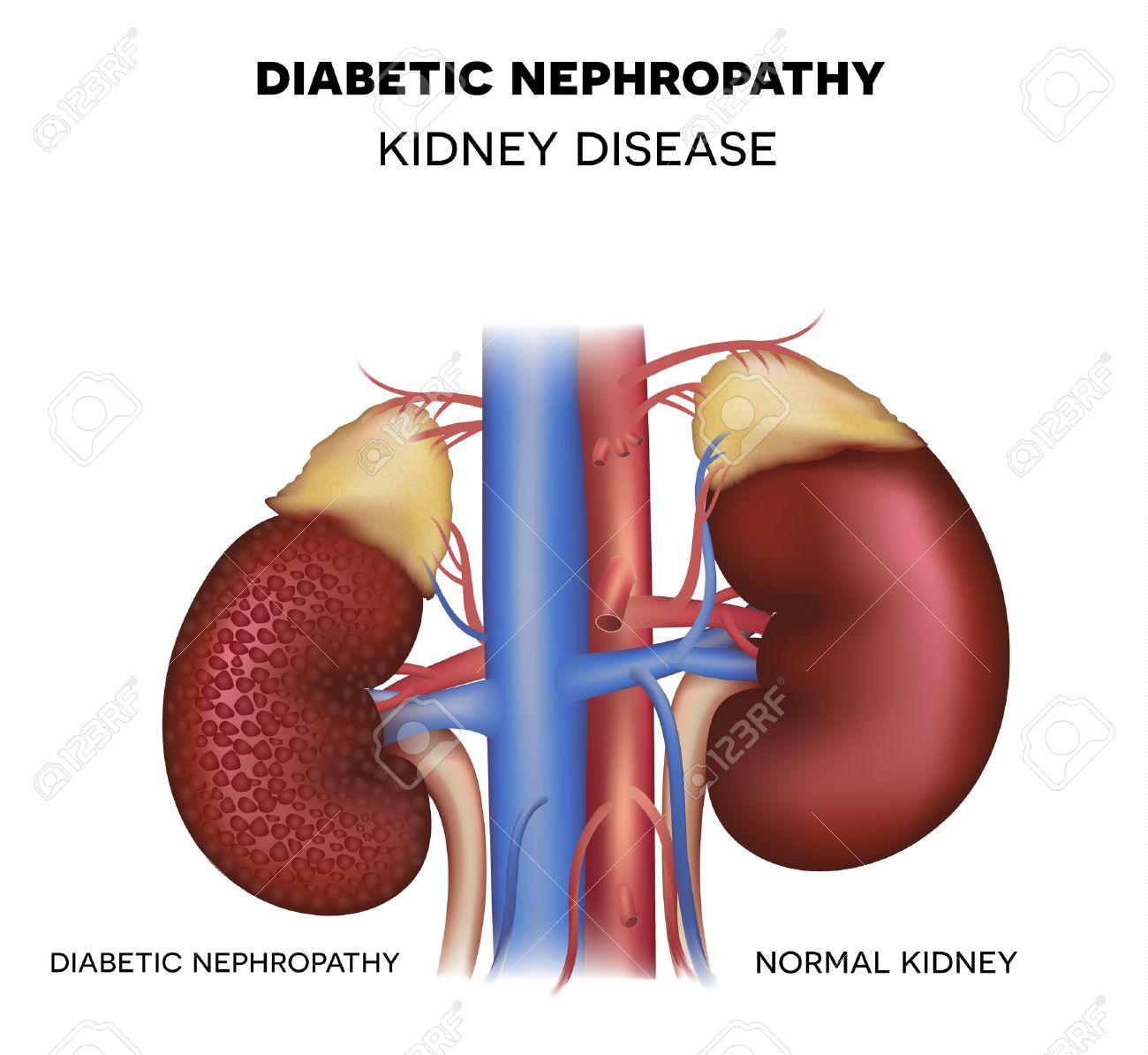 Diabetic Nephropathy, Kidney Disease Caused By Diabetes Royalty Free ...