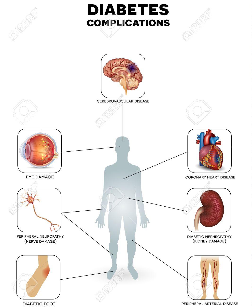 Diabète zones touchées. Le diabète affecte les nerfs, les reins, les yeux, les vaisseaux, le coeur et la peau. Banque d'images - 48245816