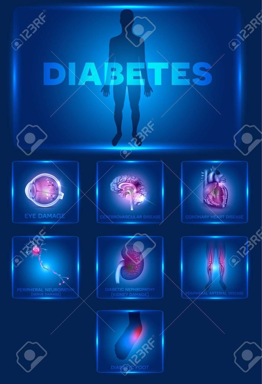 stock de ogen gevolgen diabetes