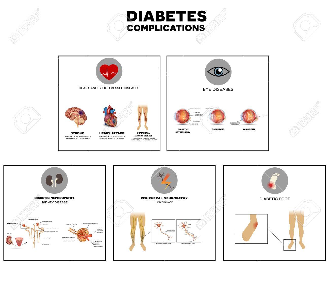 Diabetes-Komplikationen Betroffenen Organe. Diabetes Wirkt Nerven ...