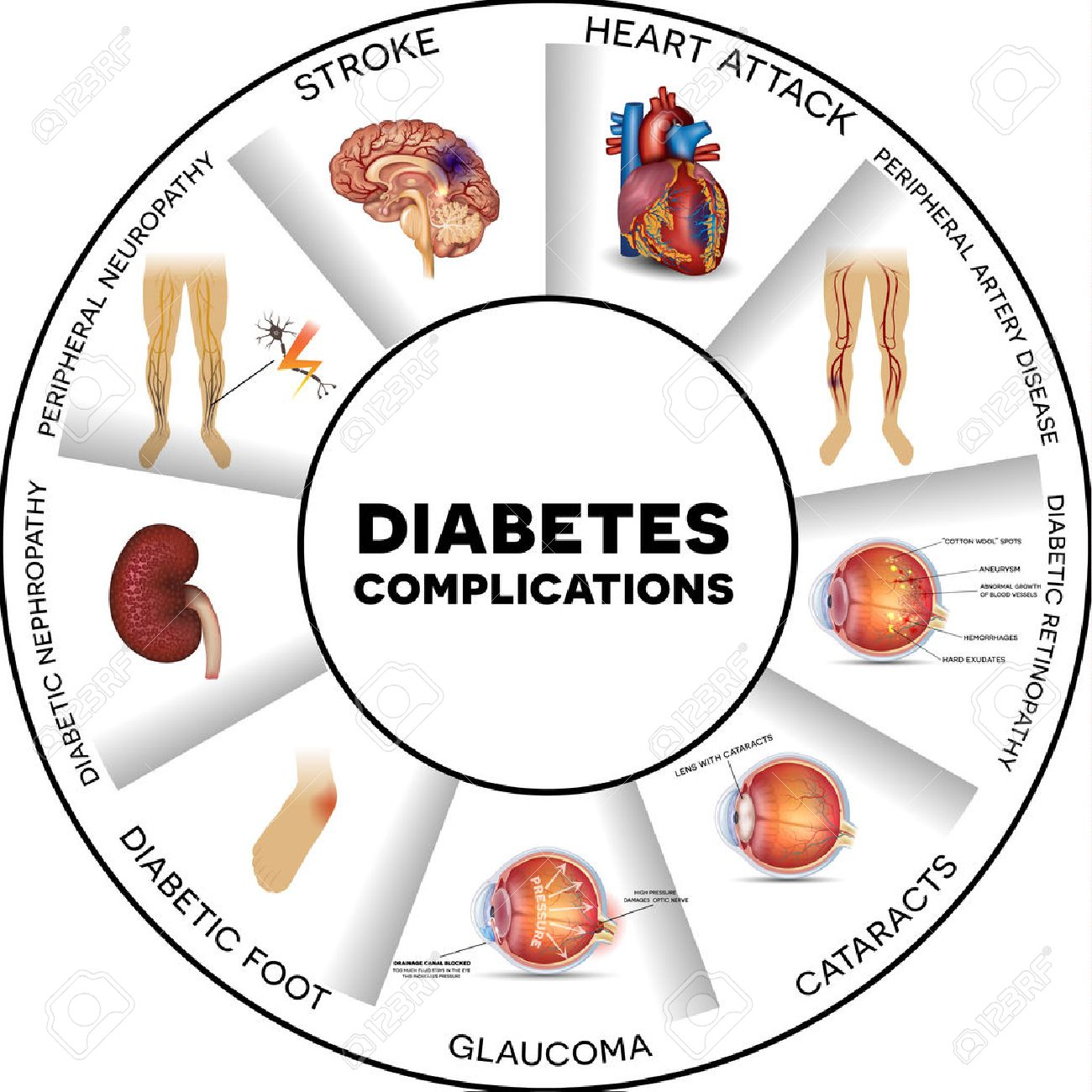diabetes ojo daño renal