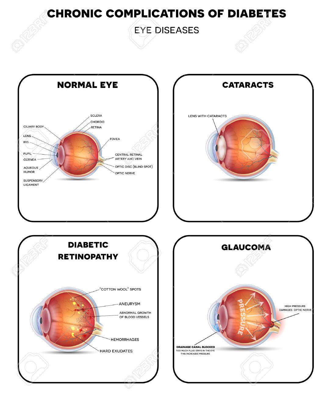 Maladies de l'oeil diabétique. La rétinopathie diabétique, cataracte et glaucome. Aussi ?il sain détaillée l'anatomie. Banque d'images - 49984950