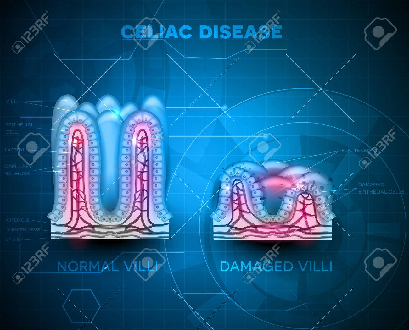 Celiac disease affected small intestine villi. Healthy villi and unhealthy villi with damaged cells on a blue technology background Banque d'images - 54018258