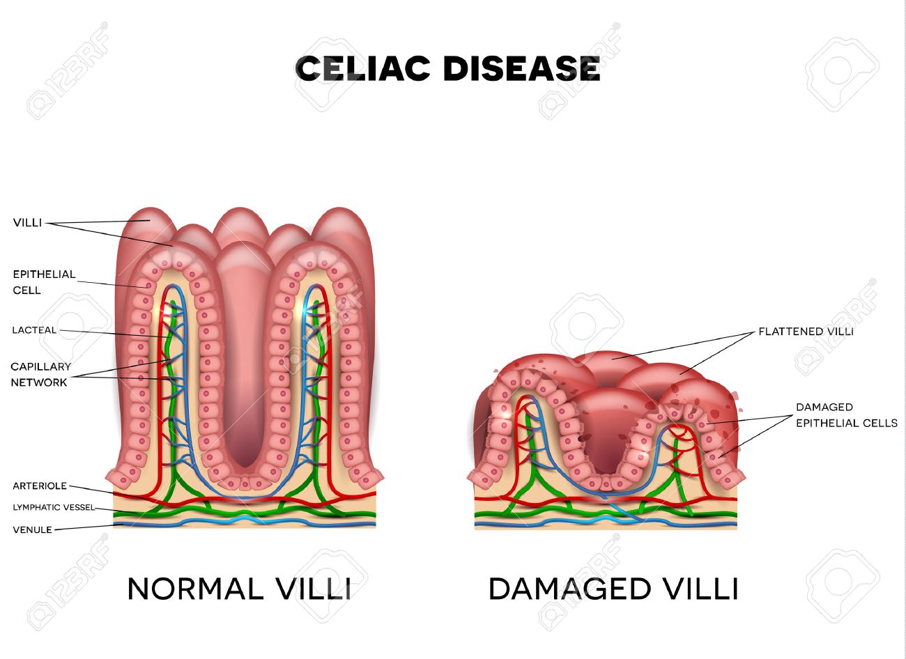 Celiac Disease Affected Small Intestine Villi On A White Background ...