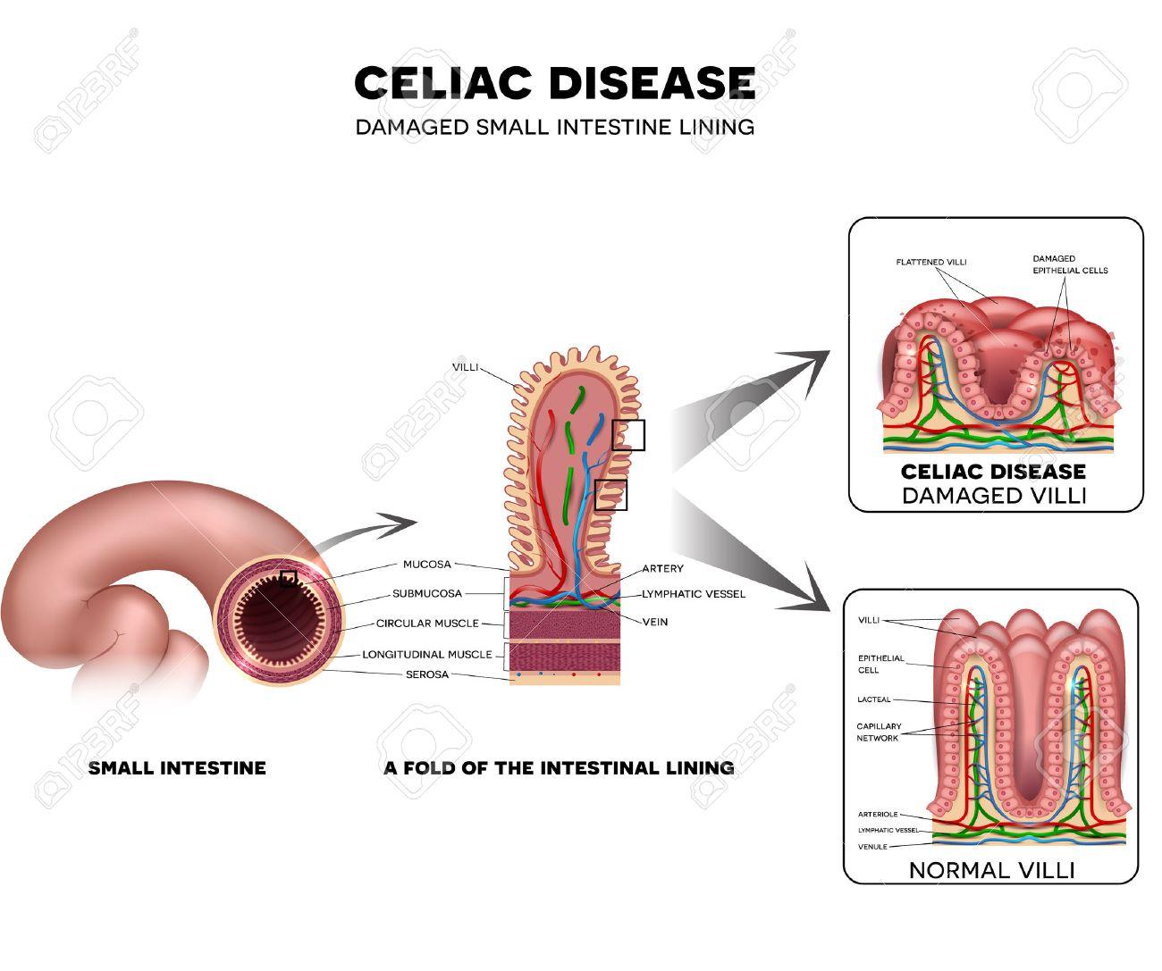 La maladie coeliaque intestin grêle de dommages de doublure. villosités sain et villosités endommagé. L'intestin grêle, un pli de la muqueuse intestinale et villosités. Banque d'images - 54018260