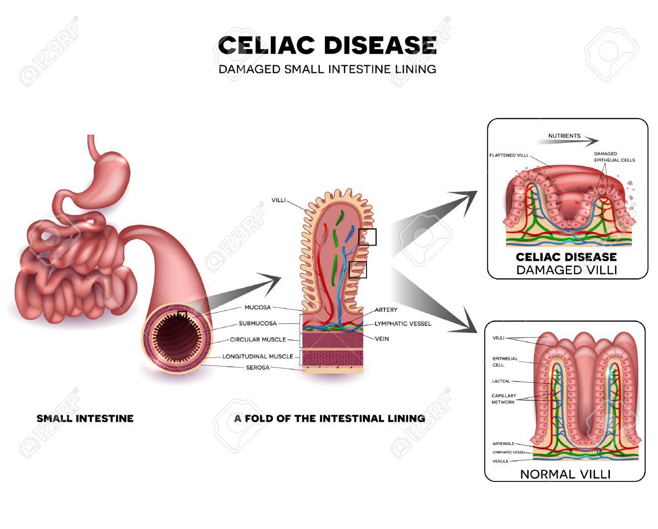 La Enfermedad Celíaca Se Detalla La Anatomía, Las Vellosidades ...