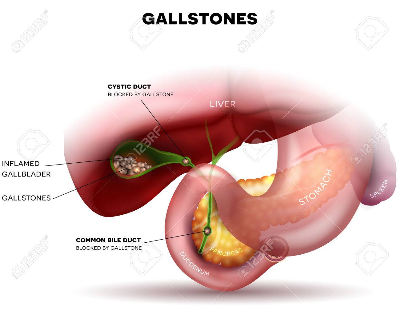 Stones In The Gallbladder And Anatomy Of Other Surrounding Organs ...